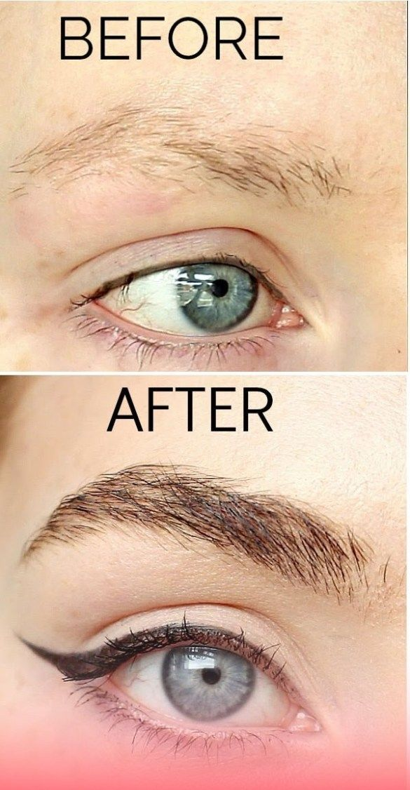 How To Make Eyebrows Grow Back Thin Or Over - Be Queen ...