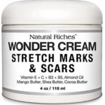 Remove and get rid of Stretch marks wVDkn stretch marks, stretch mark removal, best stretch mark cream, stretch marks cream, how to remove stretch marks, stretch mark removal cream, get rid of stretch marks, best cream for stretch marks, stretch mark treatment , cream for stretch marks, remove stretch marks, stretch marks during pregnancy, laser […]