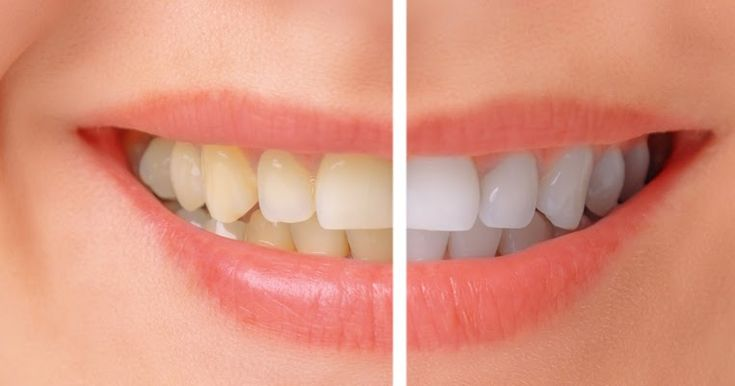 If you are looking for tooth whitening experts in Richmond than consult Richmond Family Dental clinic for best and affordable services. #ToothWhiteningRichmond