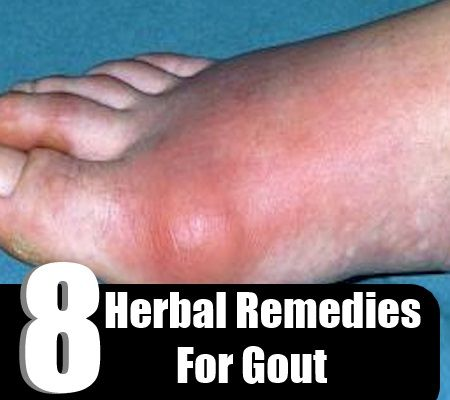 1232 Best Images About Home Remedies On Pinterest Home