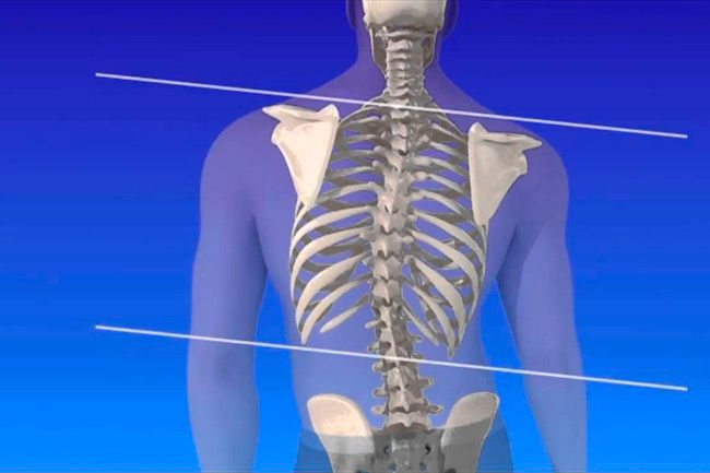 Scoliosis is a condition in which the spine bends to the side abnormally; either to the right or left. The condition is more common with girls