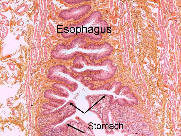 muscle and transitional epithelium Layers of the bladder wall mucous membrane (mucosa) transitional epithelium lines the bladder, ureters, and urethra transitional mucosa muscle muscularis.