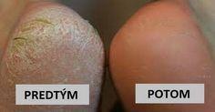 Suché apopraskané päty môžu byť pomerne nepríjemným zdravotným problémom. Niekedy dokonca aj bolestivým. Našťastie, existuje jeden prírodný spôsob, ktorý vám stým dokáže pomôcť. Navyše, je veľmi jednoduchý aponúka nanajvýš dobré výsledky. Účinky sódy bikarbóny na pokožku chodidiel Sóda bikarbóna má silné antiseptické účinky, ktoré liečia rôzne druhy infekcií, vrátane tých ťažko odstrániteľných ako na nohách. …
