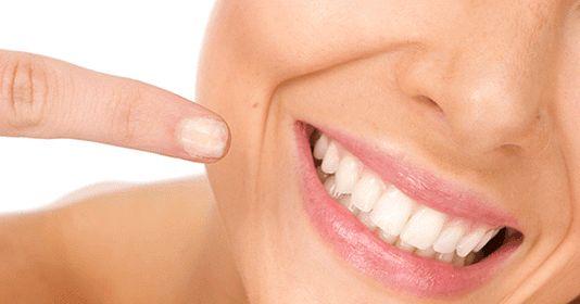 Tener una sonrisa blanca y radiante es una de las obsesiones estéticas más comunes, y es que a todos nos gustaría poder lucir unos diente...