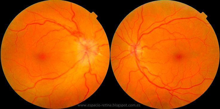 Papilitis - La papilitis (neuritis óptica) es la inflamación del extremo del nervio óptico que entra en el ojo. La papilitis puede tener varias causas, aunque la causa exacta casi nunca se sabe. En personas mayores de 60 años, la arteritis temporal es una de las causas más importantes. La papilitis también p... - eduvirama.com