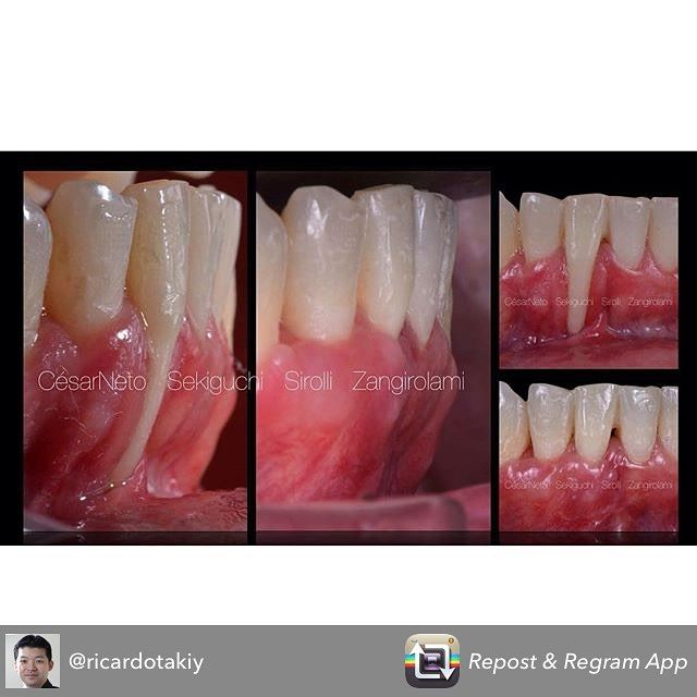 Pq não tentar?? Caso realizado no curso de cirurgia plástica periodontal na São Leopoldo Mandic / SP... Why not try???#dentistry #dentist #odontologia #odontologiacosmetica #cosmeticdentistry #periodontia #periodontology by roberto.zangirolami Our Cosmetic Dentistry Page: http://www.myimagedental.com/services/cosmetic-dentistry/ Google My Business: https://plus.google.com/ImageDentalStockton/about Our Yelp Page: http://www.yelp.com/biz/image-dental-stockton-3 Our Facebook Page…
