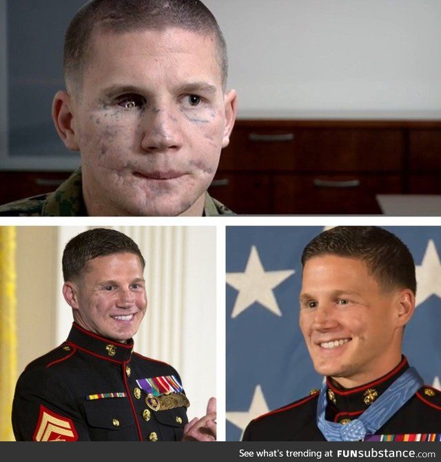 Medal Of Honor recipient Kyle Carpenter before and after facial reconstruction surgery