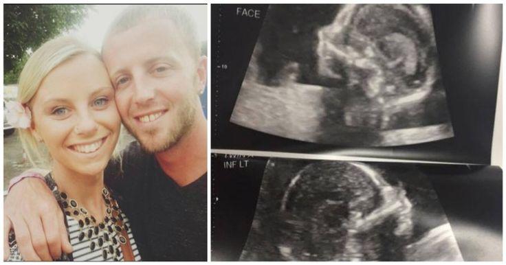 Έγκυος, πήγε για το καθιερωμένο υπερηχογράφημα. Όταν κοίταξε την οθόνη; Η καρδιά της σταμάτησε! Crazynews.gr
