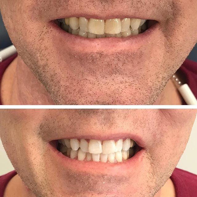 No filter  just zoom ! 45 mins later... #cabanadental#phillipszoomwhitening#beforeafter#dentalcare##dentistry#cosmeticdentistry#windsoressex#windsorontario#yqg
