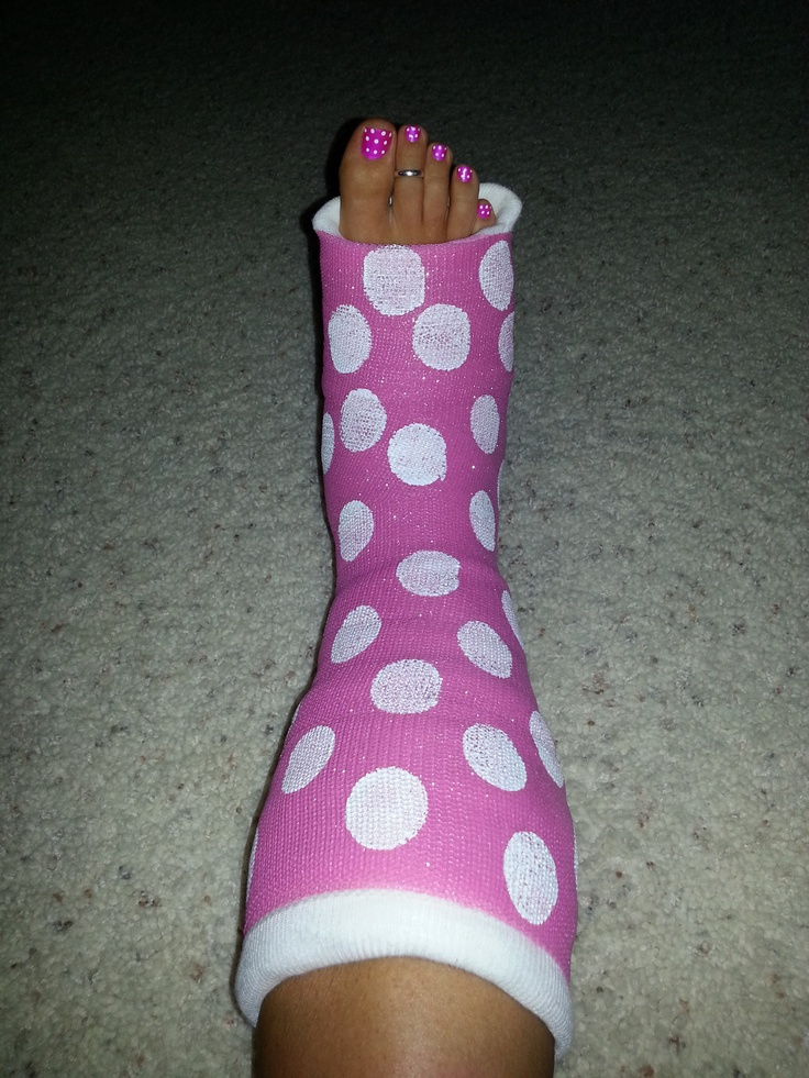 How to decorate your cast spray paint it pink then add for Arm cast decoration ideas
