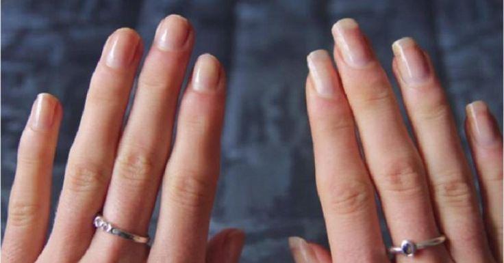 WOW! C'est cool ça! Avec les fêtes qui s'en viennent, vous pourrez avoir de beaux longs ongles, bien à vous sans avoir à faire faire des prothèses d'ongles! La jeune fille de la vidéo a testé le truc, 2 fois par semaine, pour deux semaines avec seule