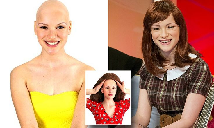 Teenager who lost all her hair becomes Alopecia UK's new ambassador