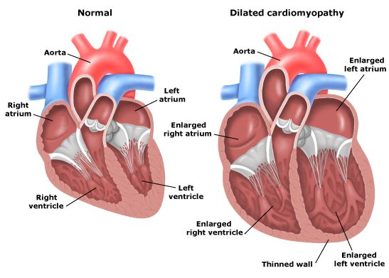 Ischemic Heart Disease : Symptoms, Pathophysiology, Diagnosis, And Treatment - Health, Medicine and Anatomy Reference Pictures