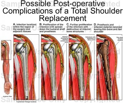 Possible post-operative complications of total shoulder replacement