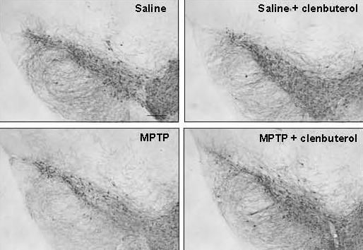 IMAGE:Representative images illustrating TH+ neurons in the substantia nigra pars compacta (SNpc). MPTPtreated animals show loss of TH+ neurons relative to control animals treated with saline or saline plus clenbuterol….        view more Credit: S. Mittal et al., Science... - #Compound, #Factor, #Genetic, #Parkinsons, #Regulates, #Risk, #TopStories