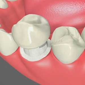 Dr. Hasken Dentist in McHenry & CrystaL lake, IL Providing Dental Crowns and Tooth Bridges to improve the appearance of teeth.