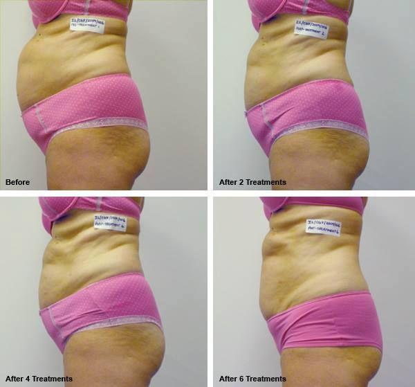 dr. panakos weight loss plan