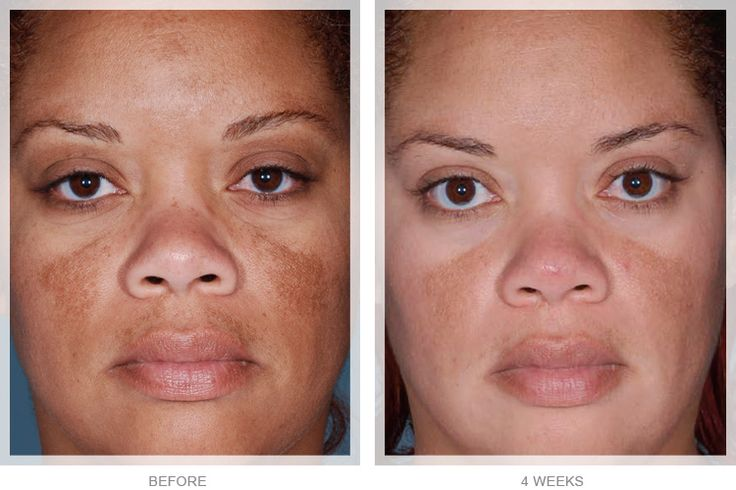See how #Obagi #NuDerm can transform your skin to look younger and healthier in these compelling before and after photos.