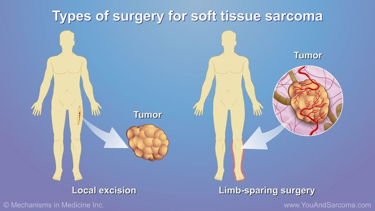 Surgery for Soft Tissue Sarcoma