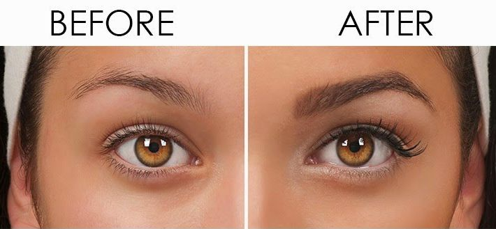 #Eyebrow #hair #transplant basically comes under the category of the body hair transplant. But this procedure involves the special skills of the surgeon as it is a #complex process.