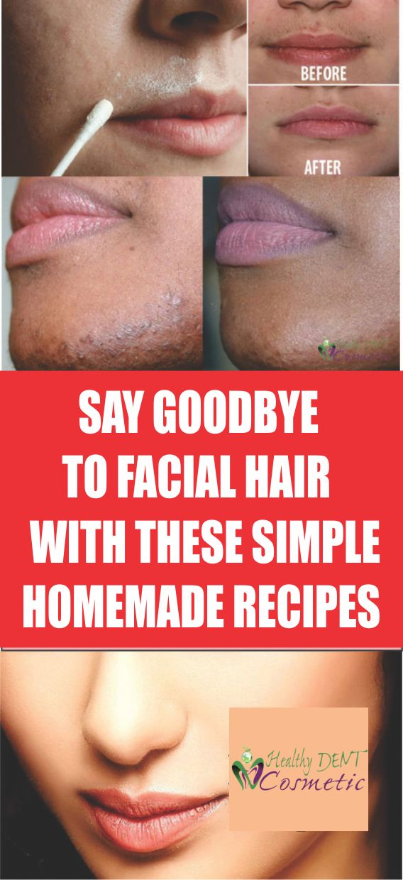 SAY GOODBYE TO FACIAL HAIR FOR GOOD WITH THESE SIMPLE HOMEMADE RECIPES!
