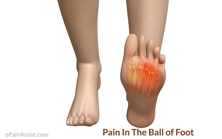 Pain In The Ball Of Foot or Metatarsalgia is a pain beneath the toes, particularly big toe. Treatment includes rest, good insoles or custom made orthotics, ice therapy, NSAIDS and surgery if conservative treatment fails.