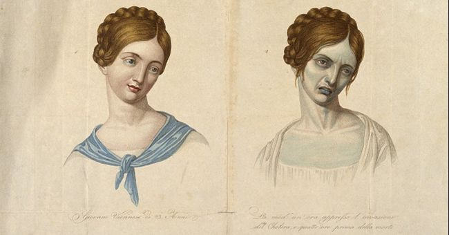 A young Venetian woman, aged 23, depicted before and after contracting cholera. Coloured stipple engraving, c.1831