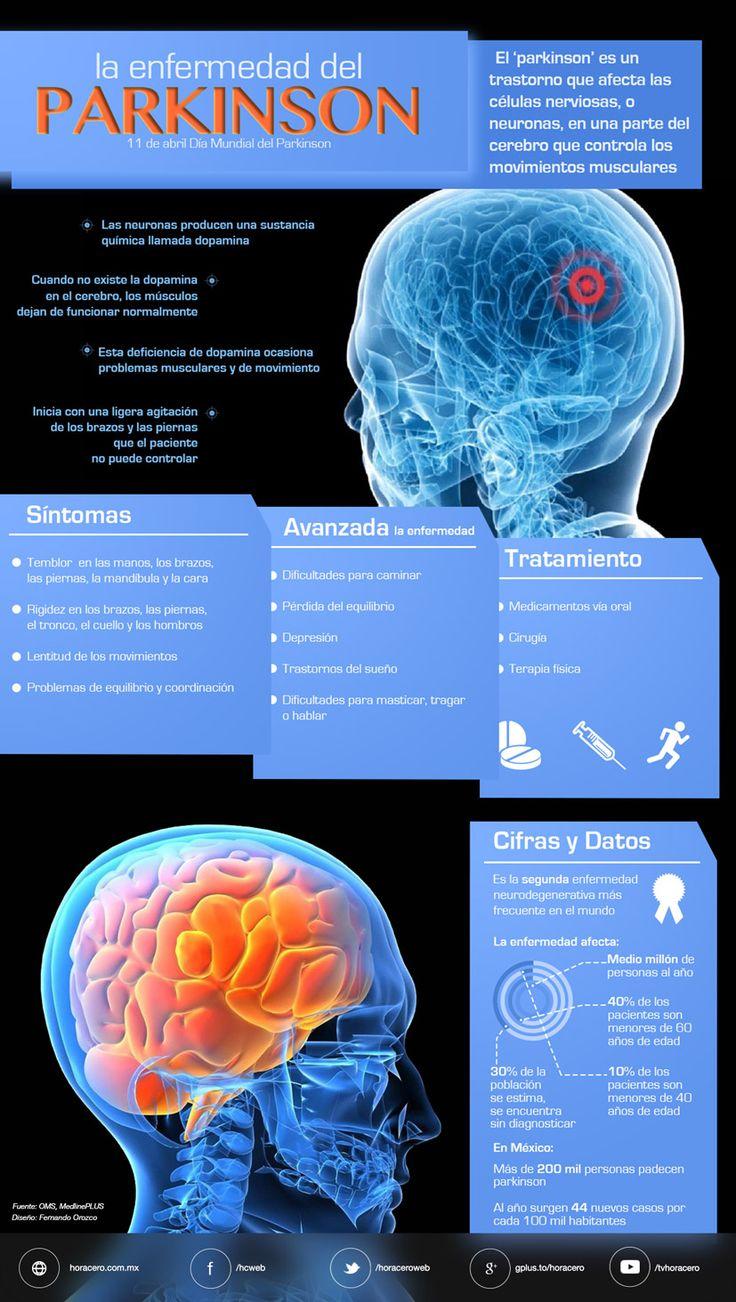 """El """"parkinson"""" es un trastorno que afecta las células nerviosas, o neuronas, en una parte del cerebro que controla los movimientos musculares."""
