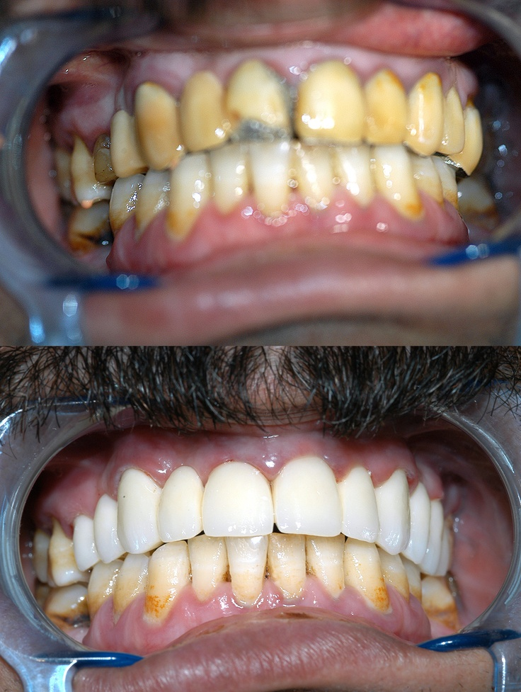 Replacement of old upper dental bridge with new one