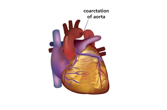 coarctation de l aorte pdf