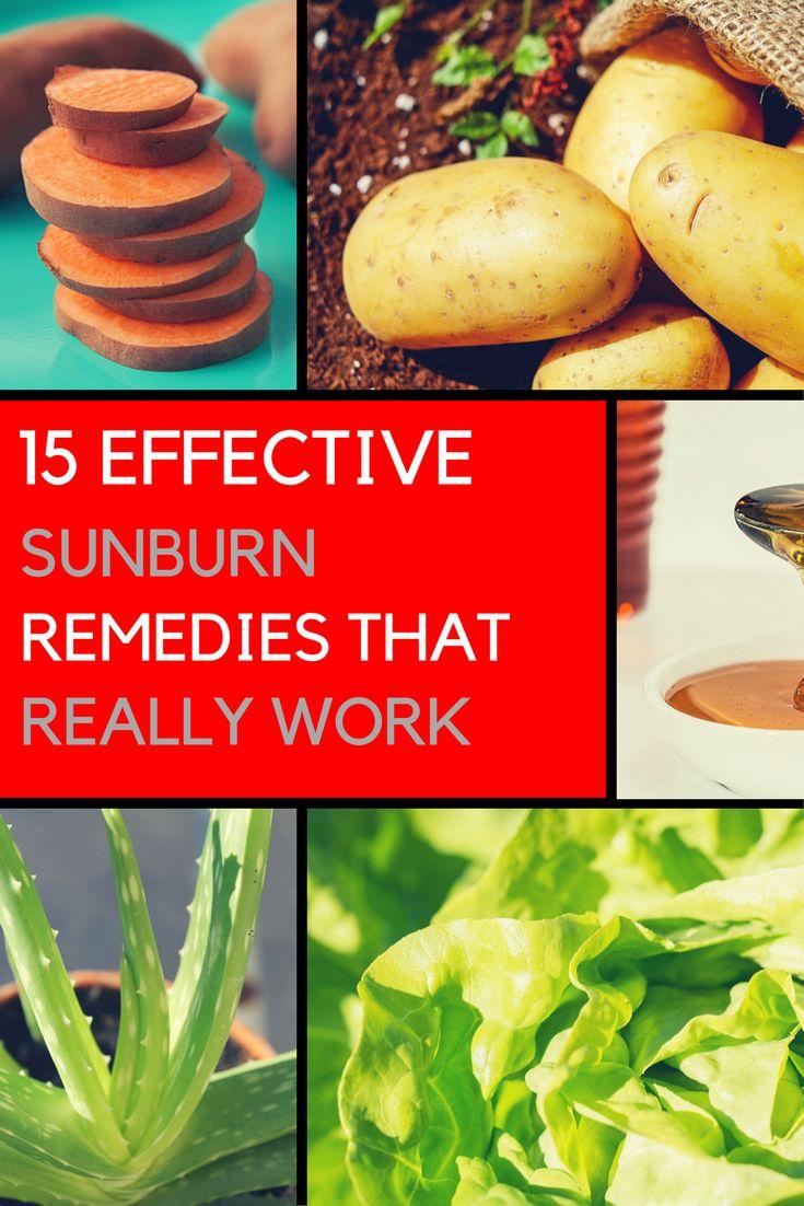 Best 25 Heal Sunburn Ideas On Pinterest Coconut Oil On