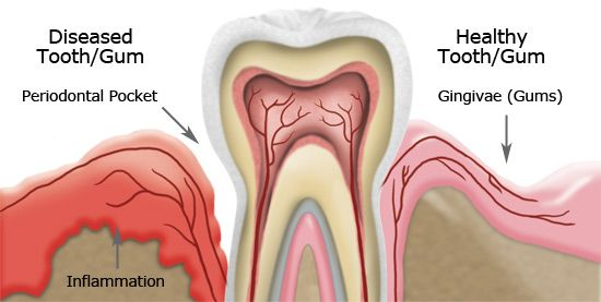 Gingivitis, usually known as gum disease, is a dental issue characterized by symptoms like constant bad breath, red or swollen gums and very sensitive, sore gums that may bleed. If left untreated, it can advance to periodontitis and become a very serious issue. Poor oral hygiene, resulting in plaque buildup is the primary cause of …