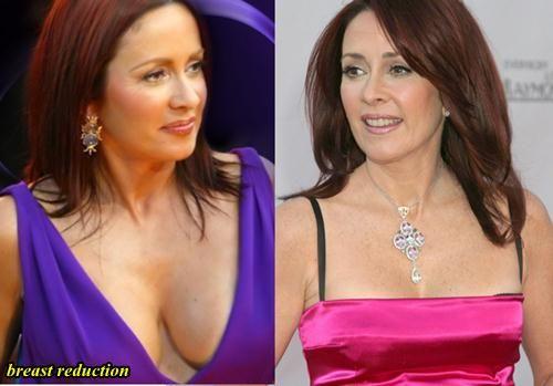 Patricia Heaton breast reduction