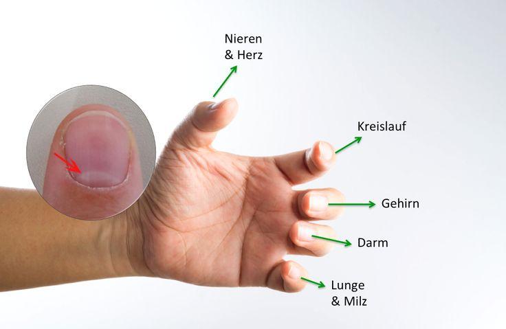 Krass: Der Halbmond auf deinen Nägeln warnt dich vor diesen Gesundheitsproblemen! Hallo Freunde, willkommen bei einem neuen Beitrag von Schrittanleitungen. Wenn Du auf deine Fingernägel schaust, dann siehst du einen kleinen Teil auf dem Nagel, der etwas heller ist als der Rest. Diesen Teil nennt man den Nagelhalbmond. Die Größe, Farbe oder Form genau dieses Halbmonds kann einiges über unsere Gesundheit verraten. Oft zeigt uns genau dieser Teil des Körpers schon viel früher ob wir eine…