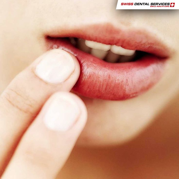 To prevent the onset of mouth ulcers there is nothing better than always having good oral hygiene habits! --------------------------------------------www.swissdentalservices.com/en#dentist#implants#smile#clinic#ismile