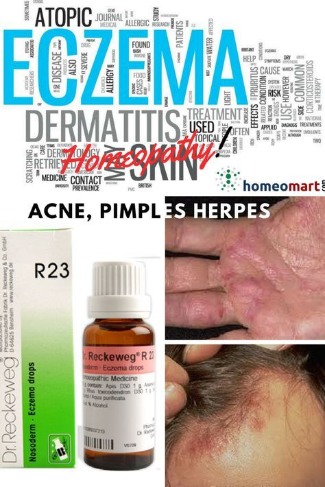 Homeopathic medicine for skin rashes