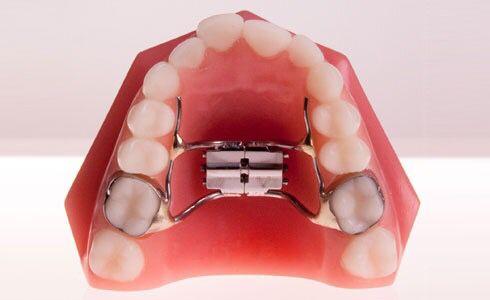 13 best ORTHODONTIC APPLIANCES images on Pinterest Dental