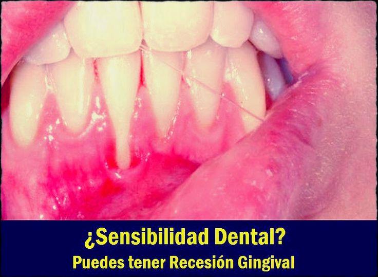 ¿Sensibilidad Dental? Puedes tener Recesión Gingival | Directorio Odontológico