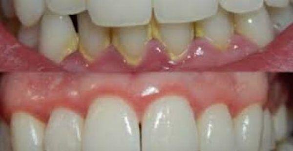 Δείτε πως να αφαιρέσετε την Οδοντική Πλάκα μέσα σε 5 Λεπτά, φυσικά, χωρίς να πάτε στον οδοντίατρο!!!