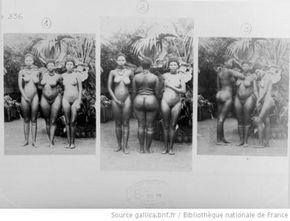 """A 20 year-old girl from South Africa known as Sarah """"Saartjie"""" Baartman would be emblematic of the dark era that gave rise to the popularity of human zoos. [...] Exhibitors were looking for certain qualities in their 'exotic' recruits that either coincided with the European beauty ideal or offered unexpected novelty. Sarah had a genetic characteristic known as steatopygia; a protuberant buttocks and elongated labia."""