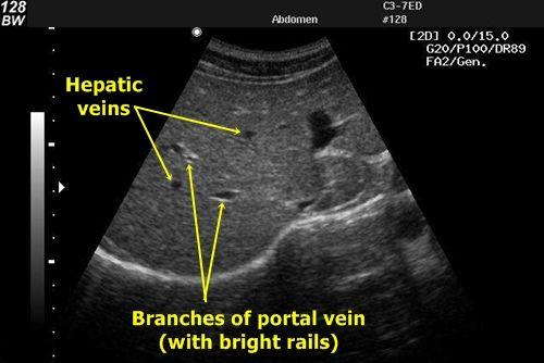 Liver vessels - Liver veins – Anechogenic x Portal vein ...
