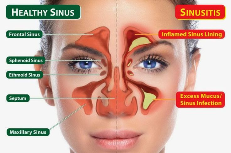 Sinusitis and fibromyalgia are much more closely related than you think. A 2003 study published in the Archives on Internal Medicine found that people who suffer from unexplained fatigue is ten times more likely to have sinus symptoms.