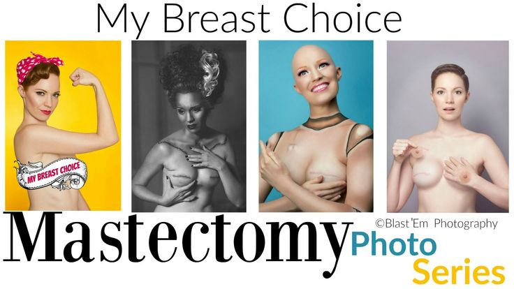 Mastectomy Photo Series - Breast Cancer