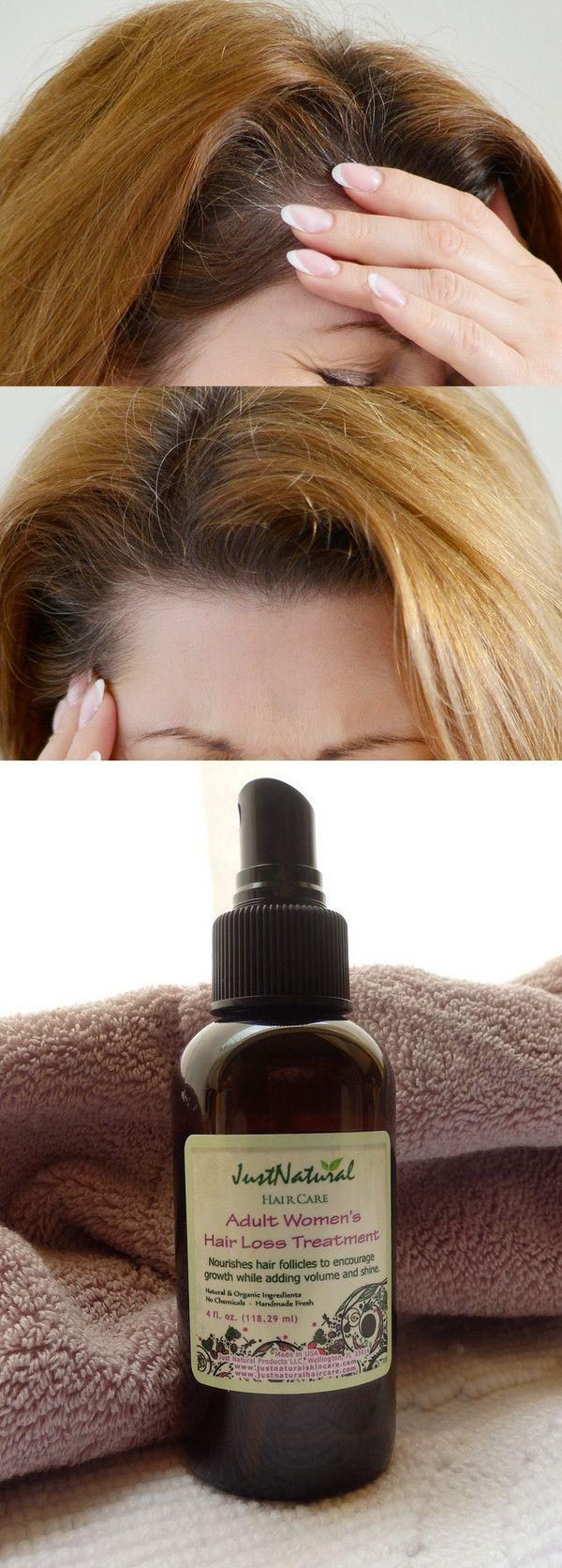 Adult Women S Hair Treatment Hair Loss Treatment Hair