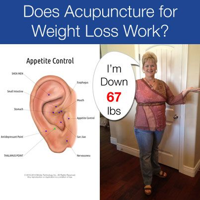 Patients I treat for weight loss claim they have better results than their friends who are doing the same weight loss program. Why?