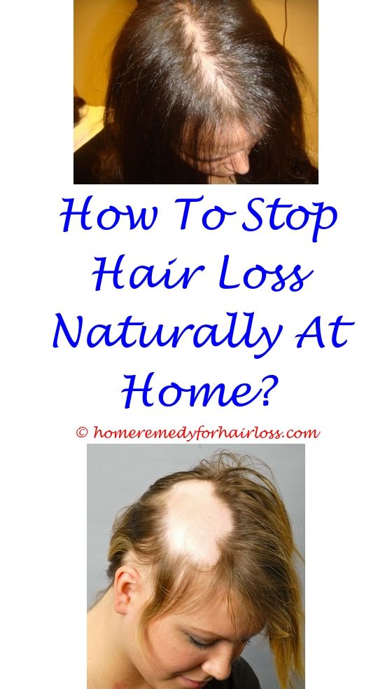Phentermine Side Effects Hair Loss