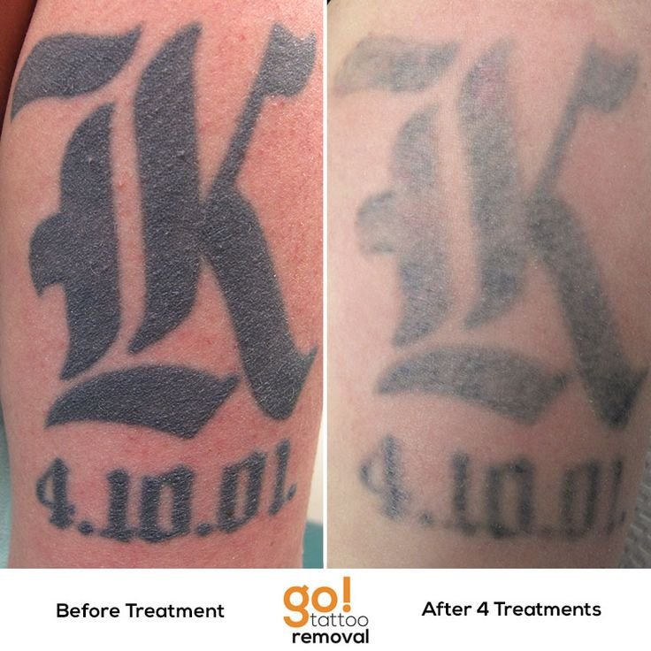 Tattoo Removal Quotes: 1000+ Ideas About Initial Tattoos On Pinterest