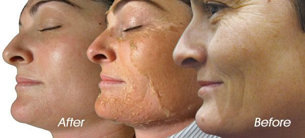 How chemical skin peels can give you beautiful skin?