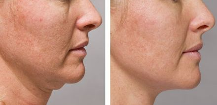 Notice how fast easy-to-perform double chin facial firming massage tackles the problem of dual chin and turkey neck. You too can use facial rejuvenation techniques to tighten baggy skin within days