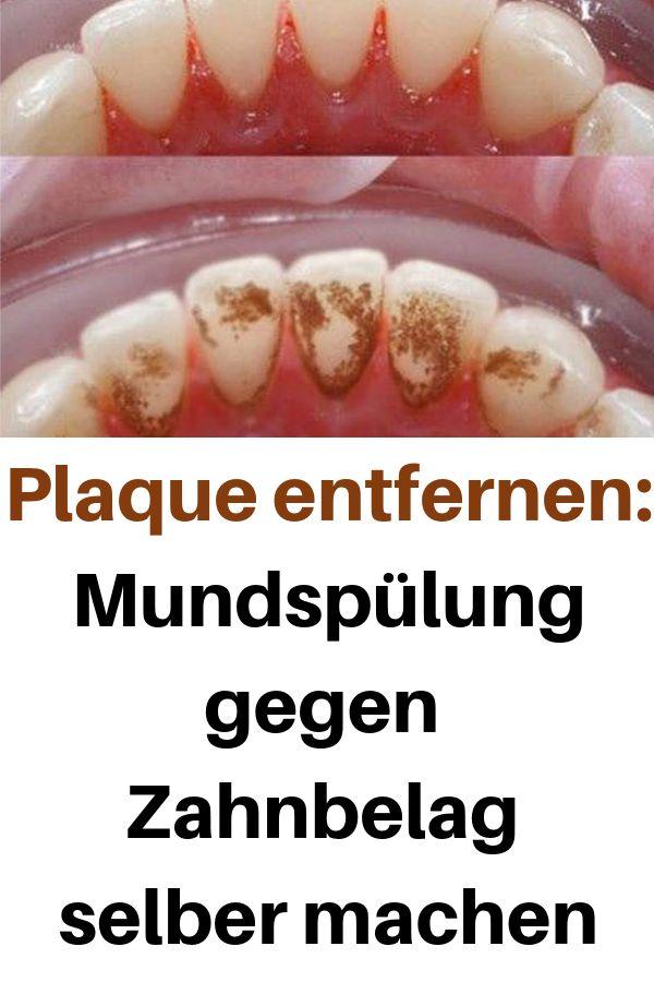 Plaque entfernen: Mundspülung gegen Zahnbelag selber